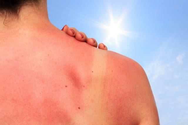 обгорела спина на солнце